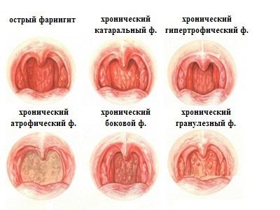 болезни горла и гортани фото и симптомы фарингит