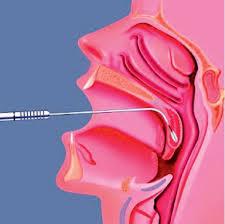 hirurg-lechenie-tonsilita