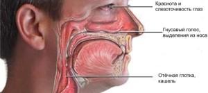 больной нос